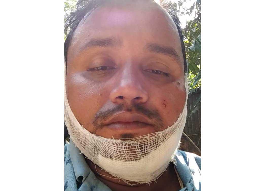 বাইক দুর্ঘটনায় লোহাগাড়া'র সাংবাদিক শহিদুল মারাত্বভাবে আহত।