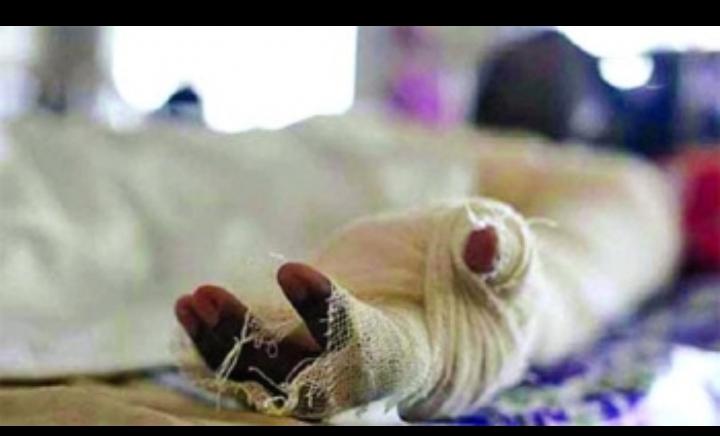 রাজধানীতে গ্যাস লিকেজ থেকে একই পরিবারের তিনজন দগ্ধ